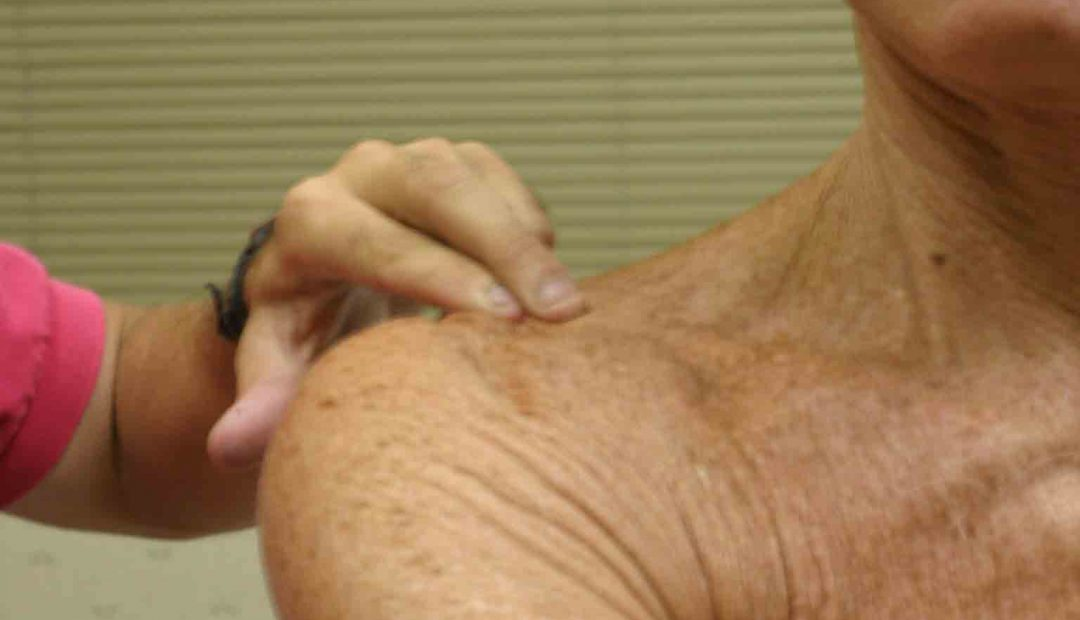 homeopathic remedies for shoulder joint pain